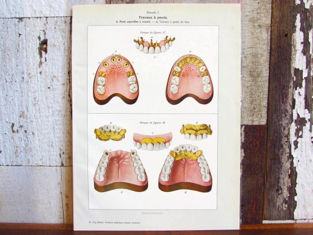 フランス アンティーク・医療系リトグラフ/歯の病気(歯科)